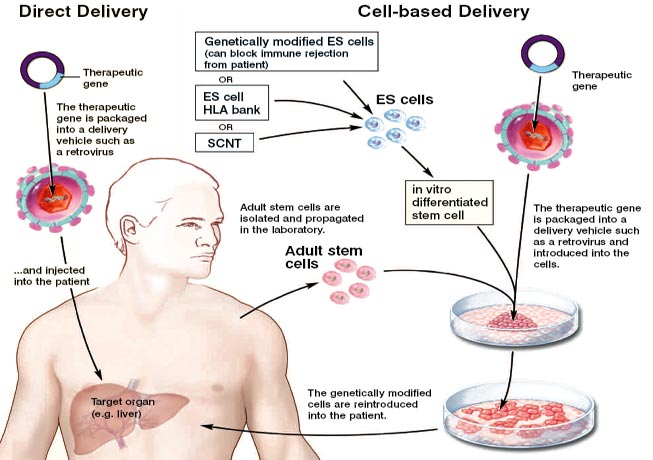 Leukemia – Acute Lymphocytic (ALL) in Adults