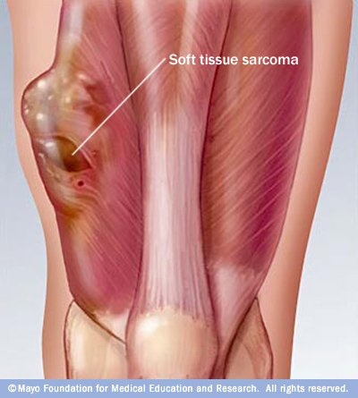 Sarcoma – Adult Soft Tissue Cancer