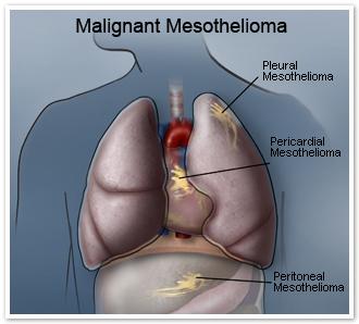 Malignant Mesothelioma