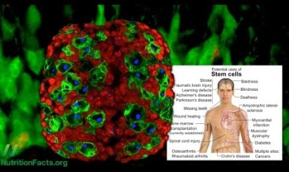 Broccoli & Breast Cancer Stem Cells